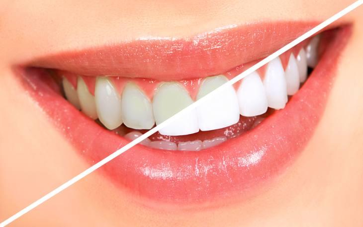 وصفات لتبييض الأسنان - ويب طب